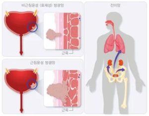 Кровь в моче, болит живот и поясница