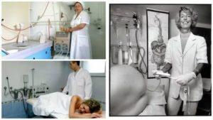 Делают ли клизму перед лапароскопией?