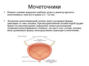 Сужения (стриктура) лоханочно-мочеточникового сегмента