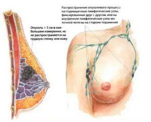 Болит и опухла грудь