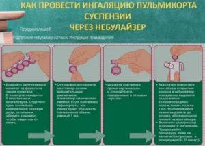 Можно ли ребенку ингаляции с пульмикортом?