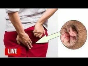 Кровь после анального полового контакта