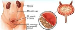 Острая боль при надавливании на мочевой пузырь