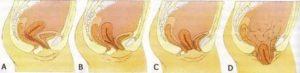 Воздух во влагалище после родов