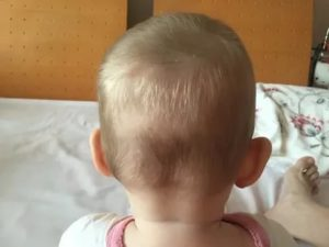 Горячая голова у грудничка