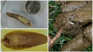 Зерна в кале,  наверное, паразиты какие?