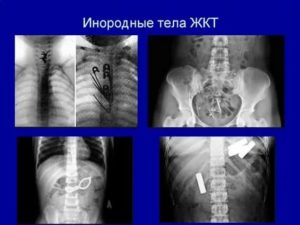 Инородное тело в ЖКТ