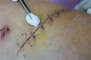 Некроз шва после операции