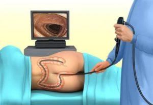 Как проходит визит к проктологу?