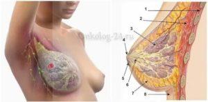 Болит уже недели две левая грудь, это не рак?