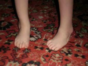 Ребенок 2,5 года стал косолапить на одну ногу