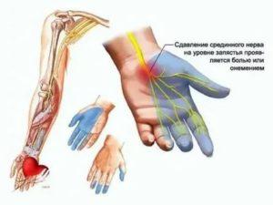 Онемение руки после удара током и операции