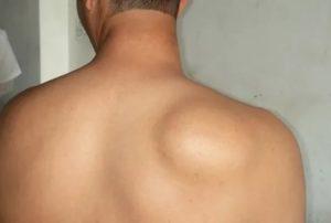 Припухлость на спине