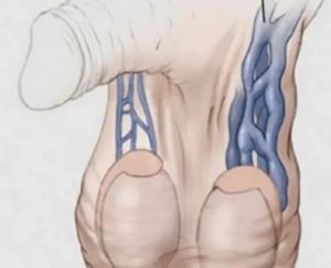 Болит в районе шрама от варикоцеле