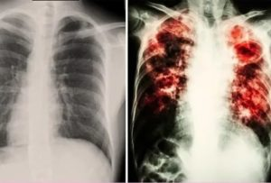Может ли активная форма туберкулеза протекать без симптомов?