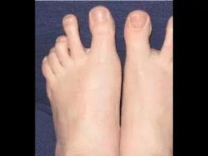 У ребенка оттопырены вверх большие пальцы на ногах