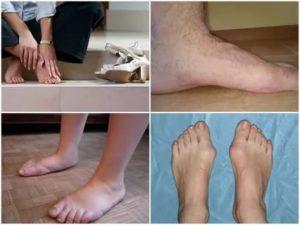Дают ли инвалидность при плоскостопии?