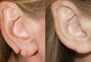 Порвал мочку уха