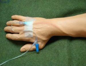 После катетера вздулась вена и покраснела рука