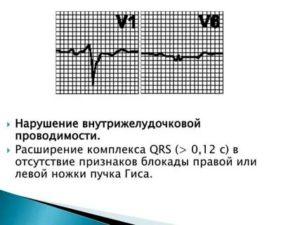 Опасно ли нарушение внутрижелудочковой проводимости?