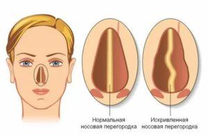 Боль в носу после септопластики