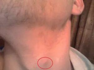 Шишка или хрящик в горле, выше кадыка, что это?