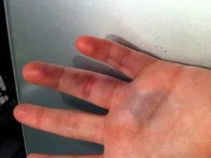 Онемение пальца после пореза