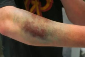 Брали кровь из вены, распухла рука и болит