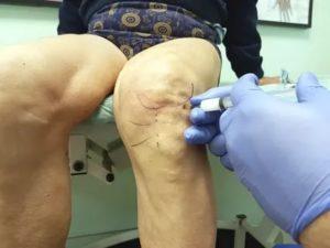 После  укола в бедро заболело колено, чем опасно?