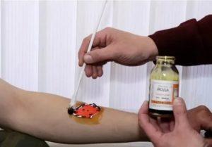 Можно ли при перевязке рану обработать антисептиком потом намазать Бетадином?