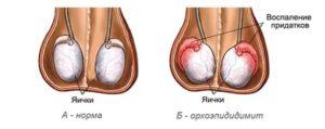 Половая жизнь после орхоэпидидимита