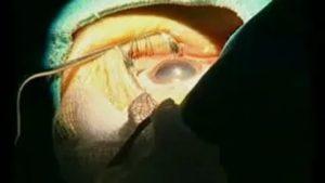 Сколько можно смотреть телевизор после операции на катаракту?