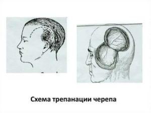 Инвалидность после трепанации черепа