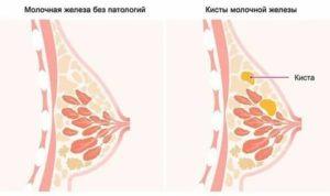Увеличилась одна грудь перед месячными