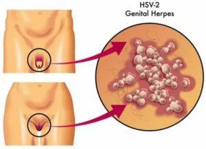 Операция при генитальном герпесе