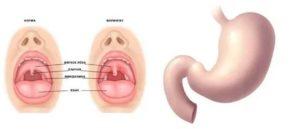 Фарингит, красное горло, увеличены лимфоузлы