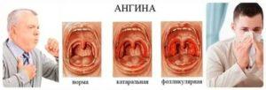 Повторная ангина через месяц у ребенка