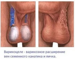 Левое яичко меньше правого, была операция варикоцеле