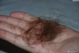 Сильно выпадает волос, что это может быть?