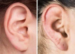 Возможно ли зарастить прокол в ухе?