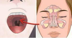 Боль в ухе, заложенность носа, привкус во рту, что это?