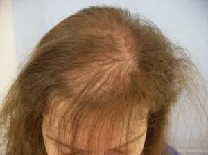 Могут ли выпадать волосы от проблем с поджелудочной?
