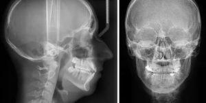 Что-то мешает в носу, рентген