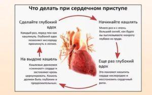 Болит сердце, выпил энергетик, что нужно делать?