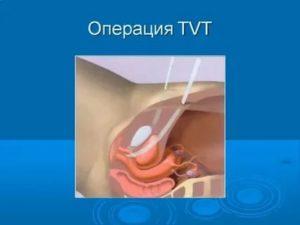 Недержание газов после операции при парапроктите