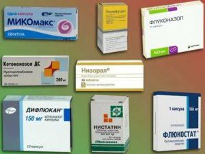 Похоже на молочницу, какие препараты нужно принять?