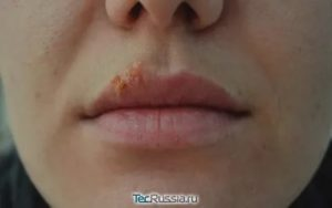 Процедура увеличения губ при герпесе