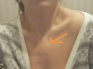 Припухлость над грудью