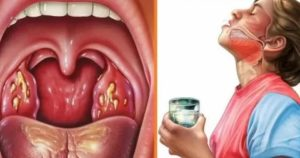 Гнойная ангина прошла после антибиотиков, может ли повториться?