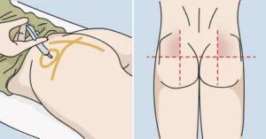 Как понять что ввел инъекцию в мышцу , а не в жировую ткань?